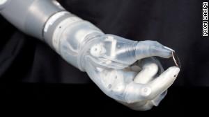 FDA Approves Bionic Arm